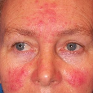 vörös foltok a homlokon és az orr közelében viszketnek vörös foltok jelentek meg az arcon viszketve