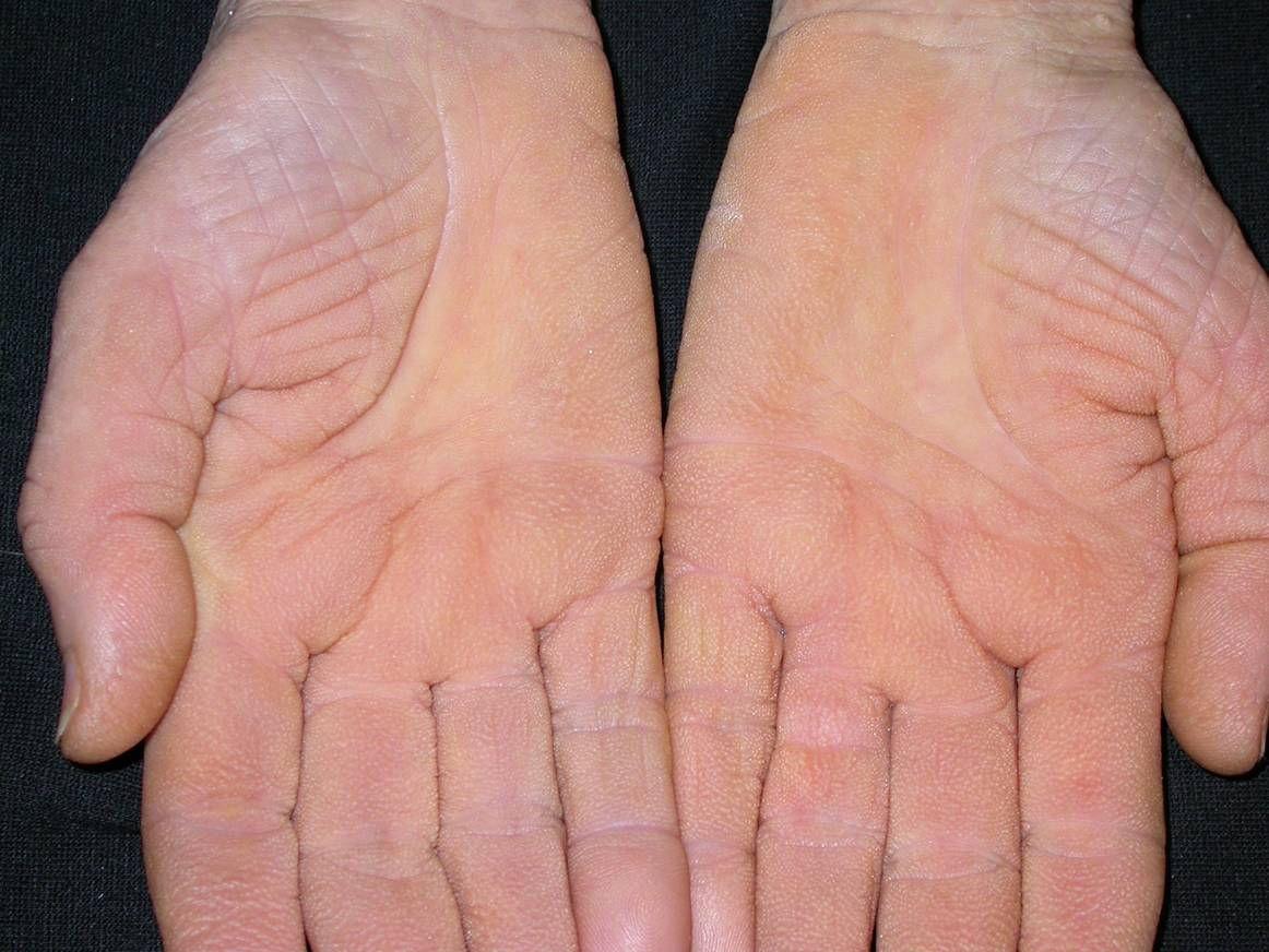 fejbőr psoriasis kezelése szódabikarbónával pikkelysömör kezelése Tsaritsyno
