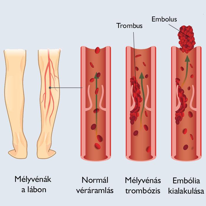 kezét vörös foltok borítják és fájnak vörös foltok jelentek meg a lábak között, hogyan kell kezelni