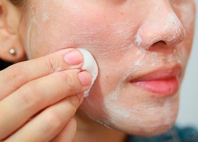 hogyan lehet megszabadulni az arcbőr piros foltjaitól vörös foltok az arcon kezelést okoznak