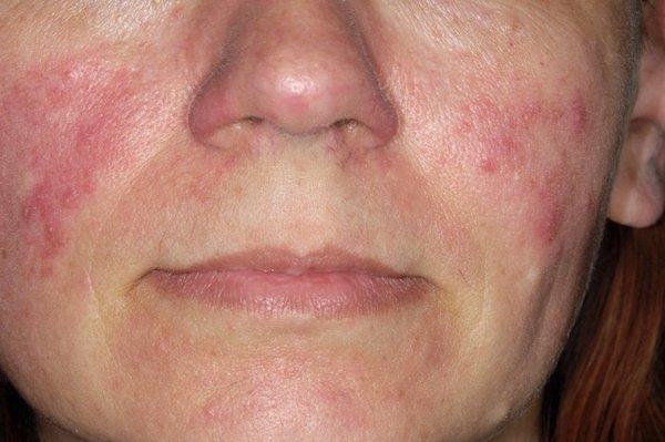 hámló bőr és vörös foltok az arcon piros foltok jelentek meg a gyomorban, és a fénykép hámlik