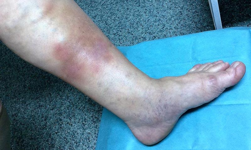 piros foltok jelentek meg az alatta lévő lábakon írjon gélt a pikkelysömörhöz
