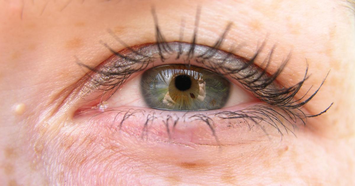 a szem alatti vörös folt leválik