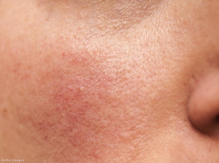 vörös pikkelyes foltok az arcon férfiaknál népi gyógymódok pikkelysömör és ekcéma kezelésére
