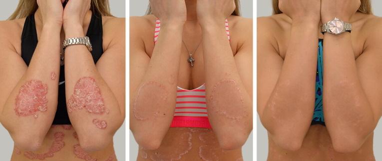 pikkelysömör kezelése dermatitis