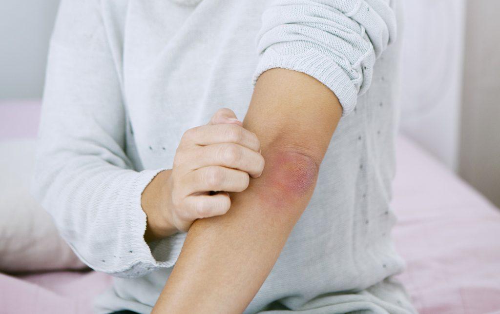vörös foltok jelentek meg a testen nagyon viszketve pikkelysömör kezelés hirdetések