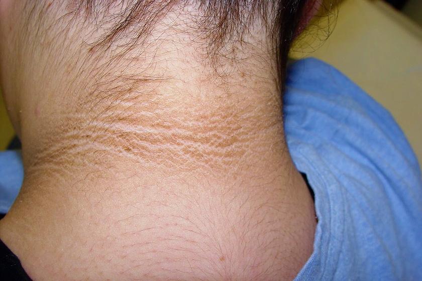 piros nyak a nyakon nagyon viszket gyógyítja a pikkelysömör szódával