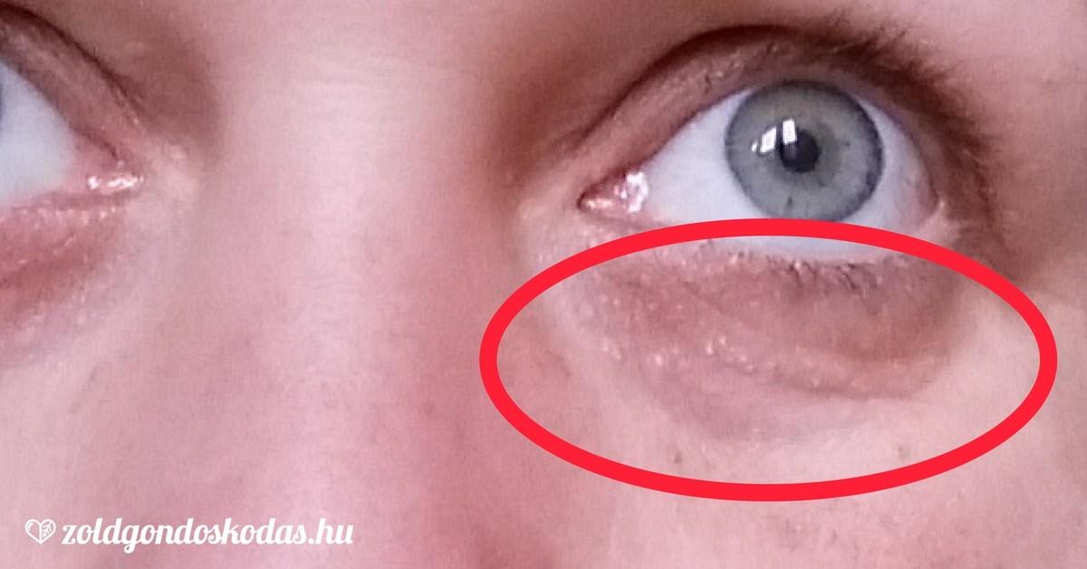 vörös foltok az orr alatt az arcon fejbőr pelyhesedik vörös foltok