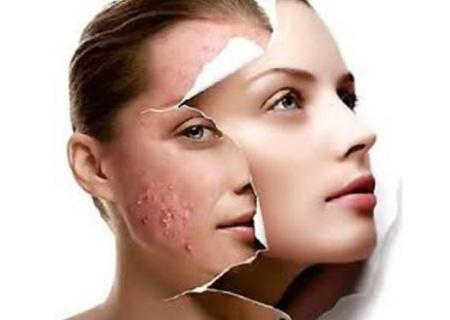 pszoriázis elleni küzdelem eszközei az arcon vörös foltok a szem körül kezelés