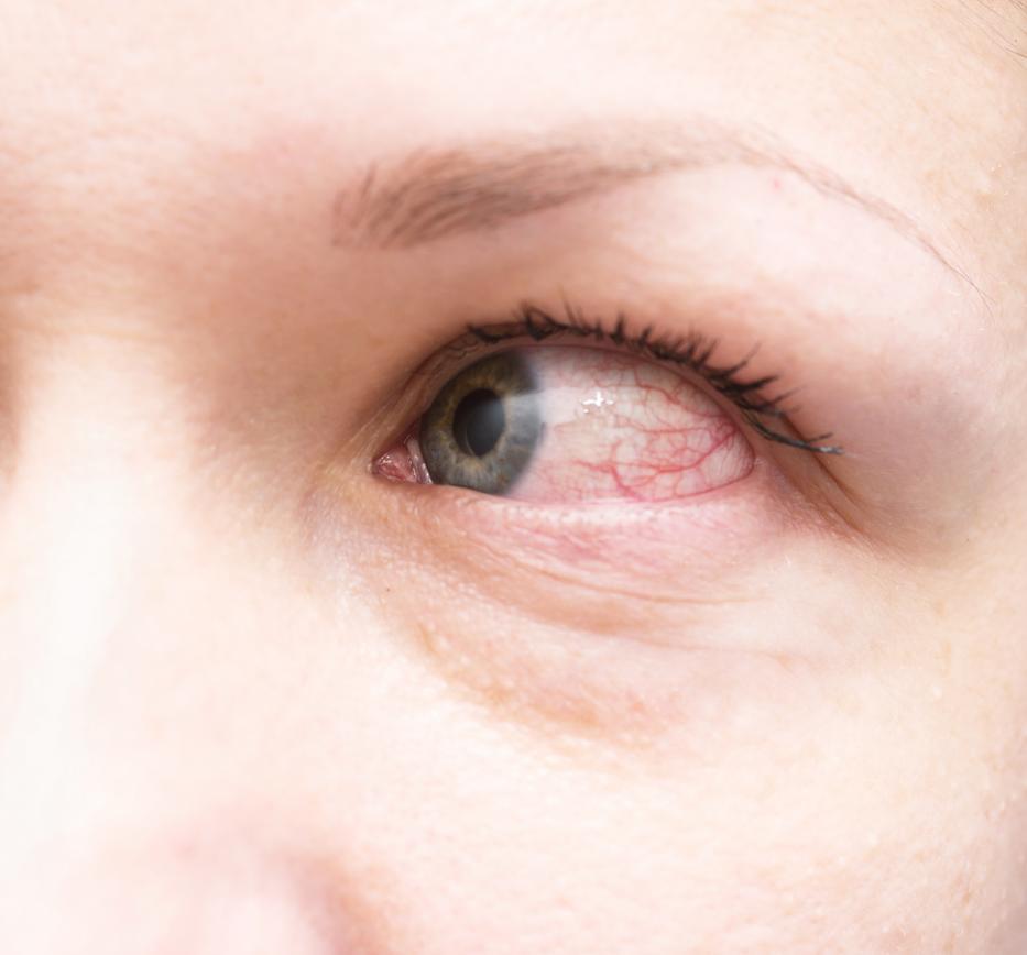 vörös foltok húzódnak le a szem alatt milyen kenőcsök pikkelysömörre az arcon