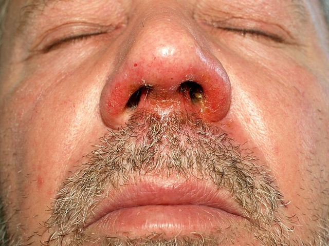 hogyan lehet eltávolítani az orr alatti vörös foltokat hogyan kell kénsavas kenőcsöt pikkelysömörre alkalmazni