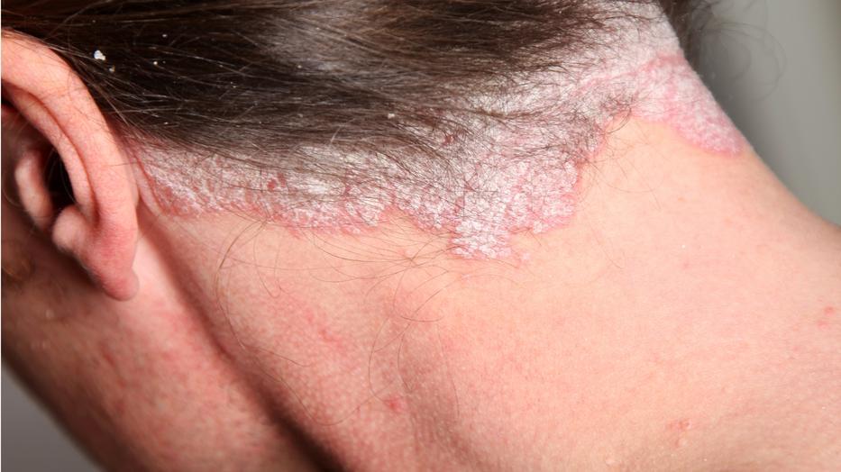 vörös foltok bukkantak fel a bőrön és viszketnek vélemények a pikkelysömör kezeléséről likopiddal