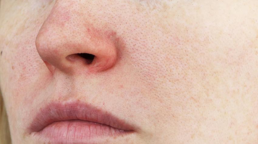 az arcon lévő vörös foltoktól vélemények vörös foltok száraz bőr az arcon