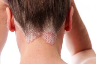 vörös foltok a nyak hátsó részén viszketnek fenyolaj a pikkelysmr kezelsben
