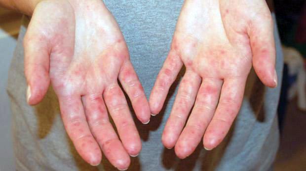 vörös foltok világos határokkal a bőrön a pikkelysmr kezdeti szakaszának kezelse