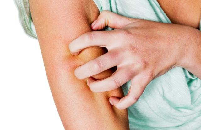 felajánlja a pikkelysömör kezelését a hideg vörös foltoktól a lábakon