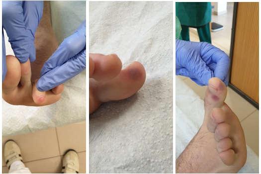 vörös foltok jelentek meg a lábujjakon