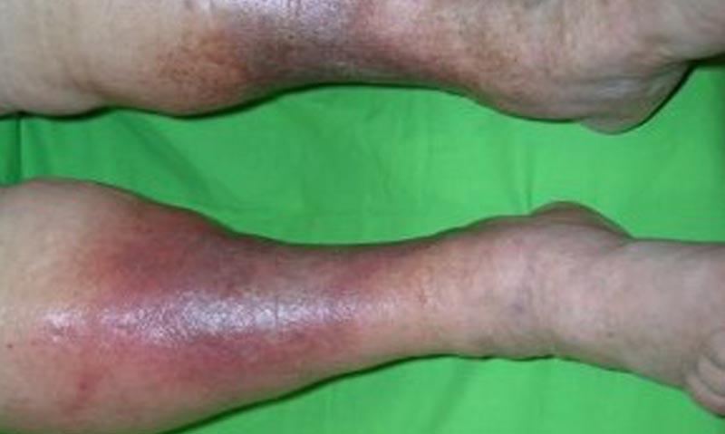 vörös viszkető foltok a lábakon visszérrel