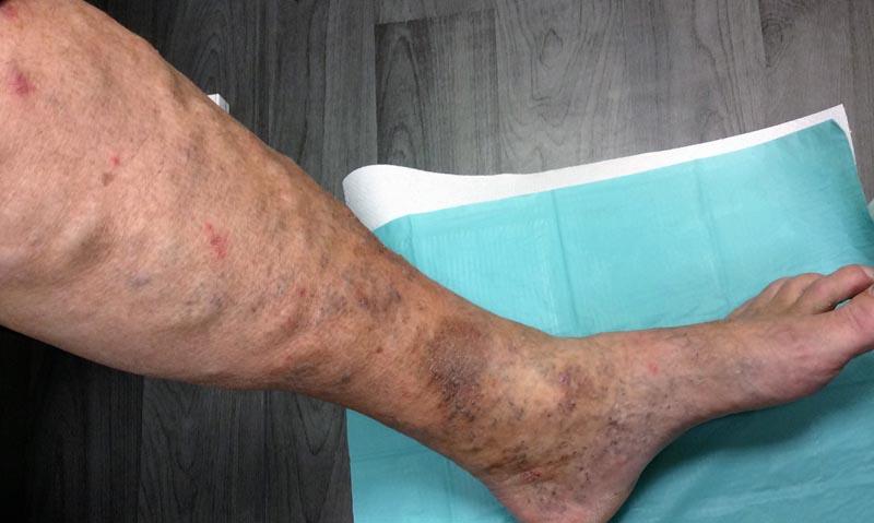 vörös foltok a boka felett a lábán lévő zúzódás után vörös folt