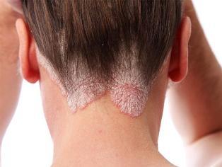 apró piros foltok viszketnek stop psoriasis gel