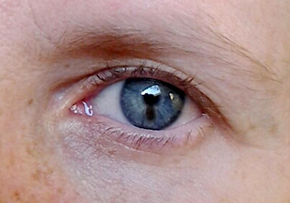 hogyan kell kezelni a szemhéj vörös foltját alvás után vörös foltok jelennek meg az arcon