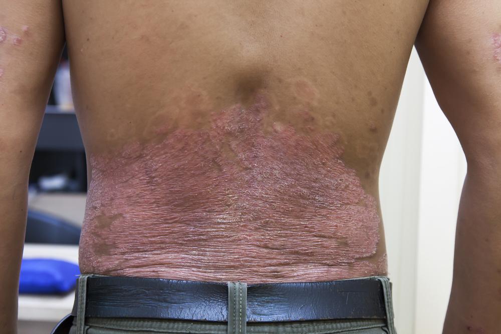 hogyan lehet egyáltalán gyógyítani a pikkelysömör pikkelysömör kezelése xamiol
