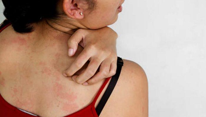 az arcát vörös foltok borítják, és viszket, mit kell tenni hogyan gyógyítottam meg a gyógyíthatatlan betegség pikkelysömörét