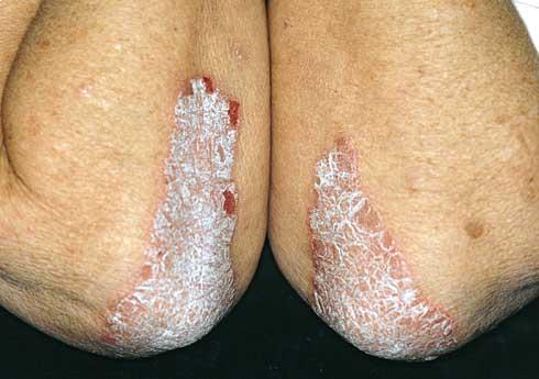 érintés után vörös foltok jelennek meg a bőrön