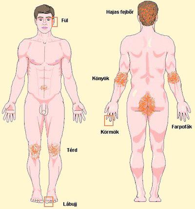 szteroidok pikkelysömör kezelése