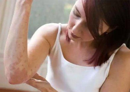 pikkelysömör kezelése idős korban vörös folt születésétől az arcon