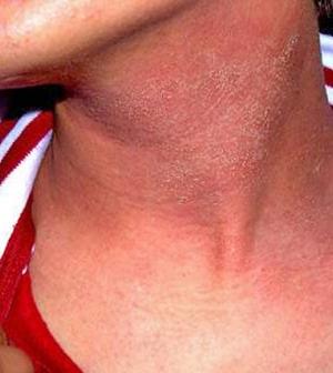 piros nyak a nyakon nagyon viszket kenőcs pikkelysömör tiszta test