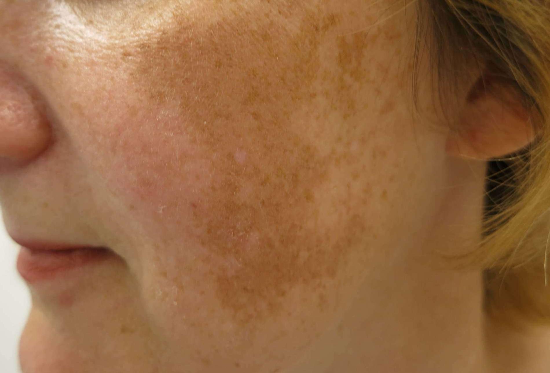 mint pikkelysömör gyógyítása belülről vörös száraz folt az arcon mi ez