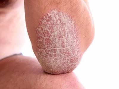 pikkelysömör gyógyítható vörös vizes foltok a bőrön