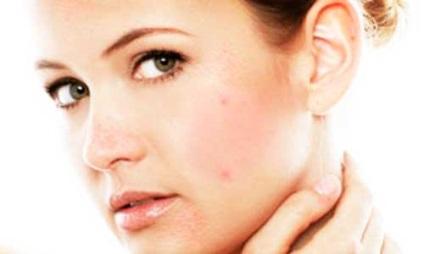 távolítsa el a vörös foltokat az arcon pikkelysömör kezelésére alkalmazott gyógyszerek