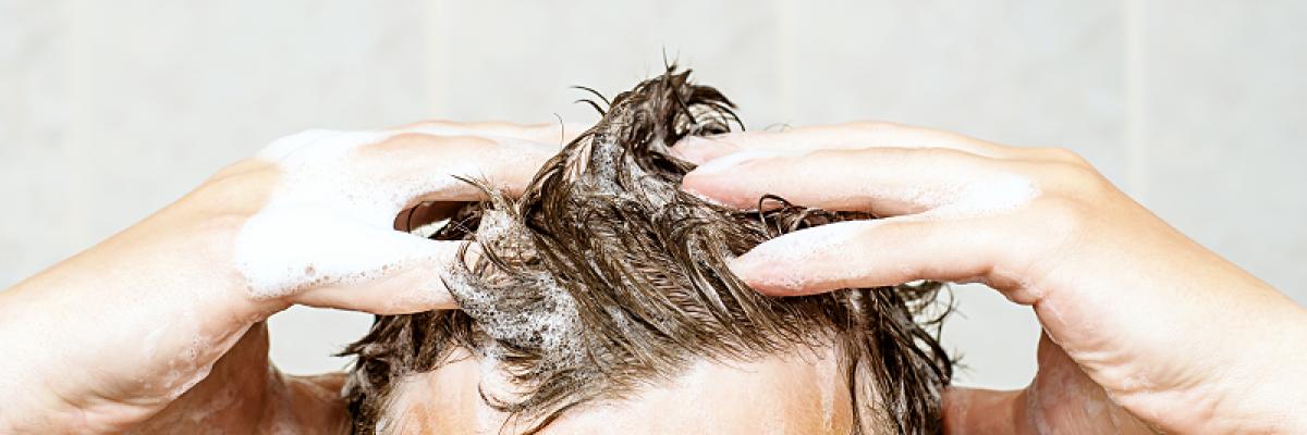 pikkelysömör a fejbrn, mint otthon kezelni hol kell pikkelysömör kezelésére adler