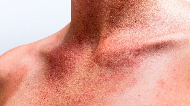 vörös foltok a nyakon és viszket a nap pikkelysömör kezelése kangal