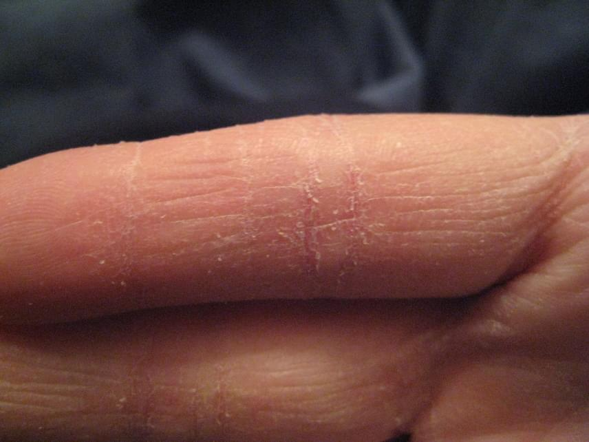 Ez a 12 tünet a bőrön előre jelzi a cukorbetegséget