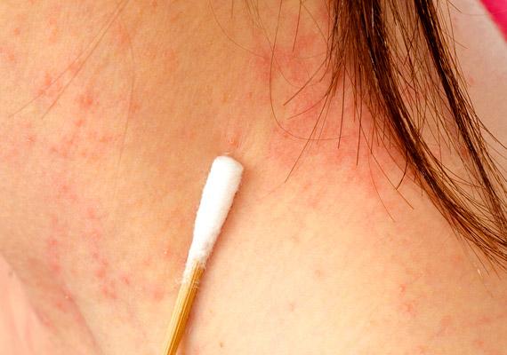 vörös folt jelent meg a nyak bőrén hogyan lehet pikkelysömör kezelésére szódabikarbónát