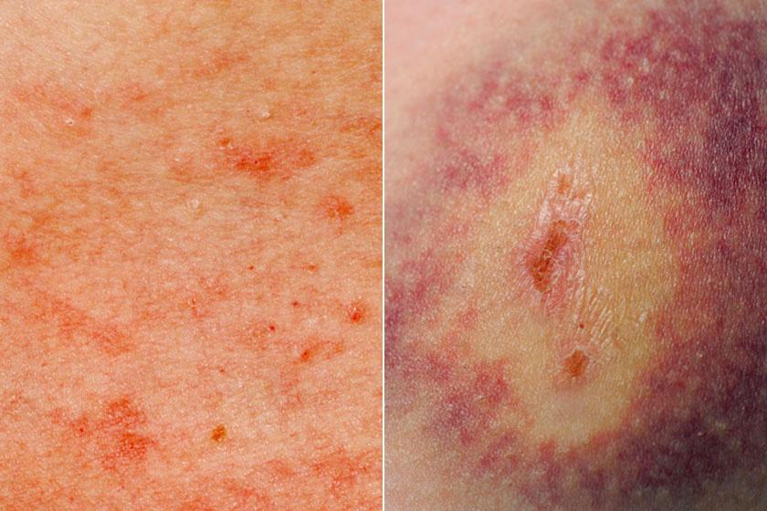 vörös foltok mérgezése a bőrön egy új gyógyszer a pikkelysömörhöz