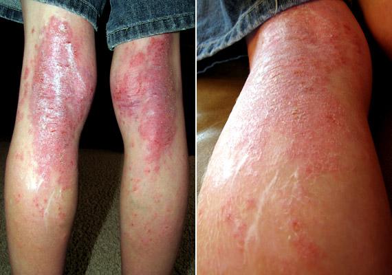 pikkelysömör a lábakon fotó a kezdeti szakaszban kezelés