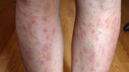 vörös foltok jelennek meg a lábakon és viszketnek