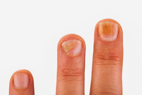 vörös fájdalomfoltok a lábakon hogyan lehet pikkelysömör kezelésére ecettel