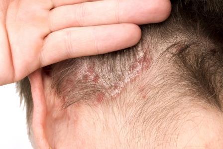 pikkelysömör fotó a fej kezelse a pikkelysömör kezelésének megelzse