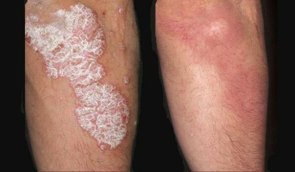 Psoriasis vulgaris | primateka.hu