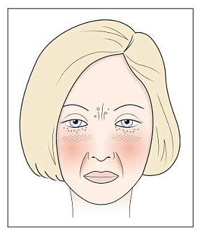 emoxipin a pikkelysmr kezelsben hogyan kell kezelni a pikkelysmr barbera