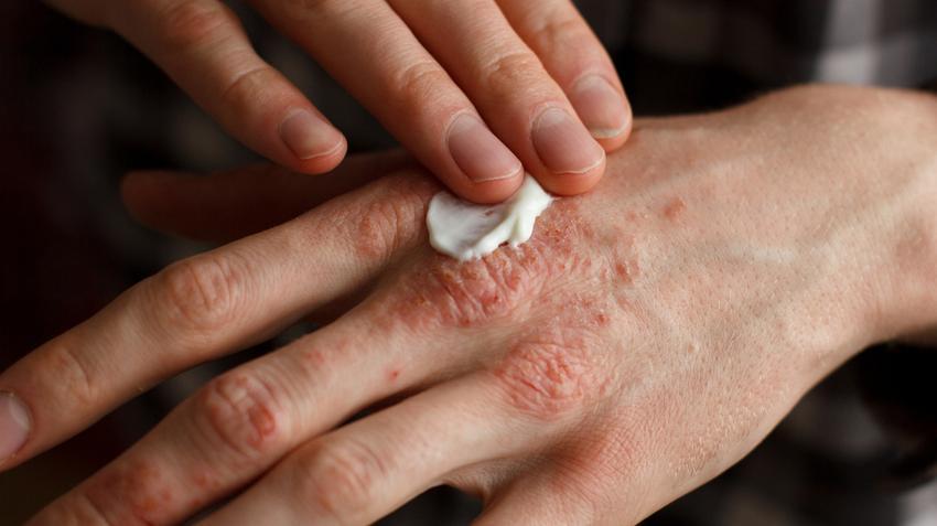 vörös foltok a tenyér bőrén gyógyítani pikkelysömör népi gyógymódok