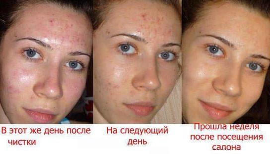 az arc tisztítása után a foltok pirosak