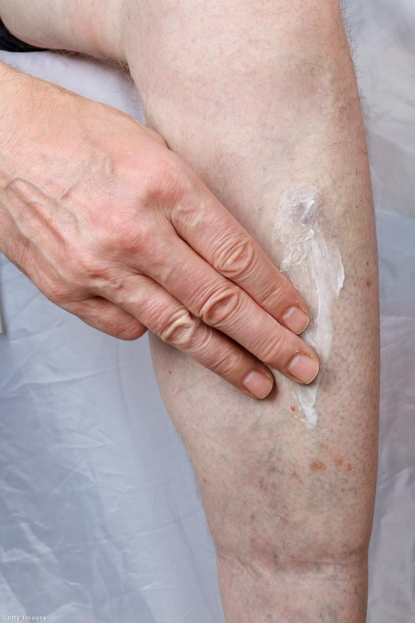 vörös foltok a lábakon cukorbetegséggel hogyan kell kezelni pikkelysömör orekhovo zuevo kezelse