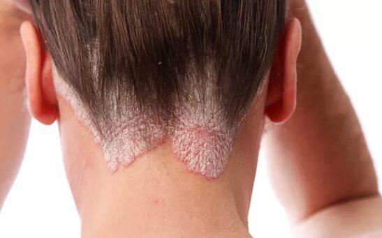 hogyan lehet otthon gyógyítani a pikkelysömör arcát? a hátát és a karjait vörös foltok borították