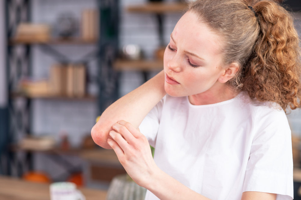 sap fenyő pikkelysömör kezelése vörös foltok jelentek meg a testen és az arcon